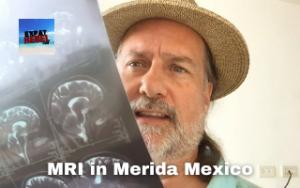 MRI Brain scan in Merida Yucatan Mexico